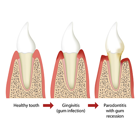 Periodontal Therapy | Reconstructive Dentist | Periodontal Disease