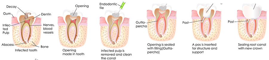 Root Canal Eugene | Dental Root Canal | Tooth Pain | Reconstruct